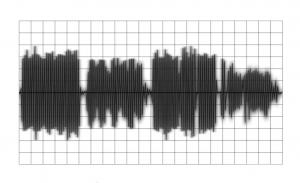 Signal compressé avec le gain